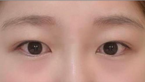 眼睛修复术前图