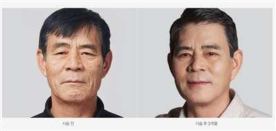 韩国富爱整形医院面部提升案例