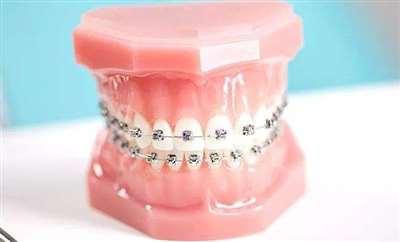 牙齿矫正效果好吗