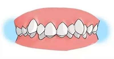 牙齿歪斜可以矫正吗