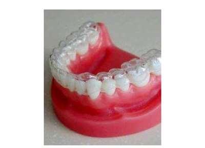 牙齿矫正有哪几种形式