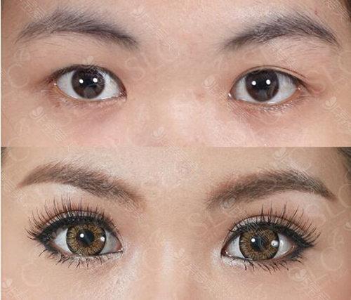 泰国哪家双眼皮手术做的好