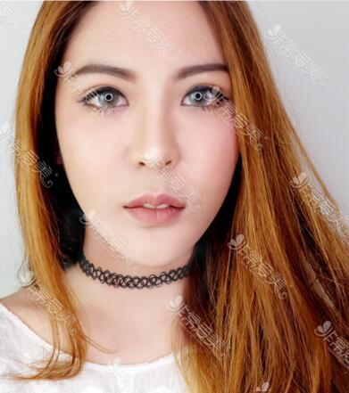 泰国SLC Siam Laser Clinic双眼皮隆鼻一起做经历