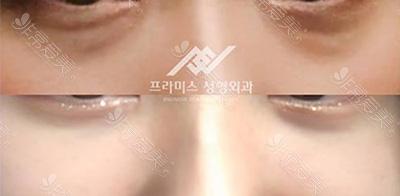 韩国promise博菈米斯整形外科去眼袋案例图