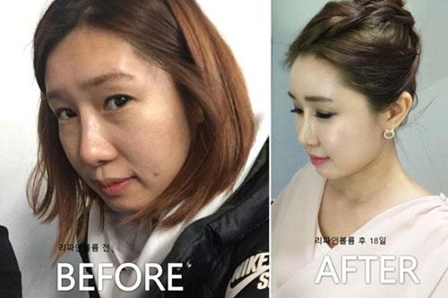 韩国piena整形外科面部脂肪移植案例