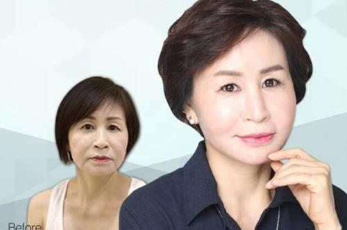 韩国piena整形外科抗衰老案例图