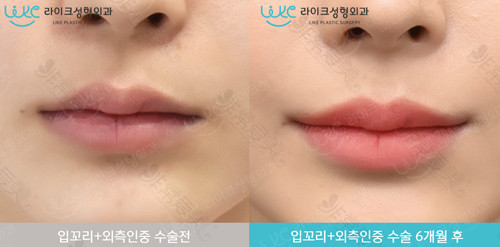 来客医院唇部整形对比图