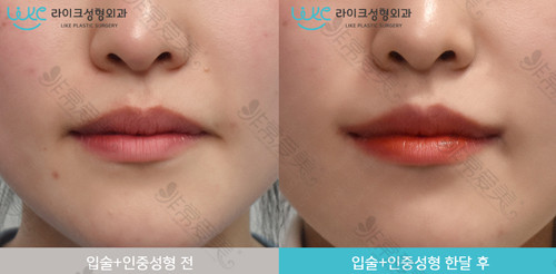韩国来客医院唇部整形前后对比
