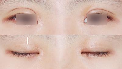 双眼皮术后明显不对称图示