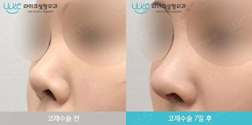 韩国来客like整形外科朝天鼻矫正前后对比案例