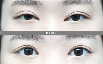 韩国歌娜整形双眼皮整形效果