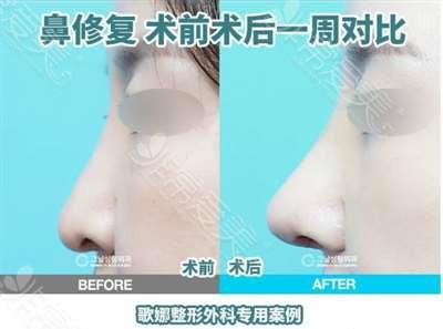 韩国歌娜整形隆鼻案例