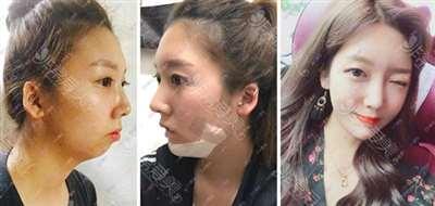 韩国DA整形外科双鄂整形效果