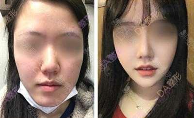 韩国DA整形双鄂手术案例