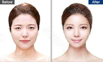 韩国DREAM梦想整形外科医院双鄂整形效果