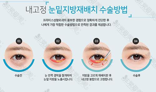 眼底脂肪重置手术科普