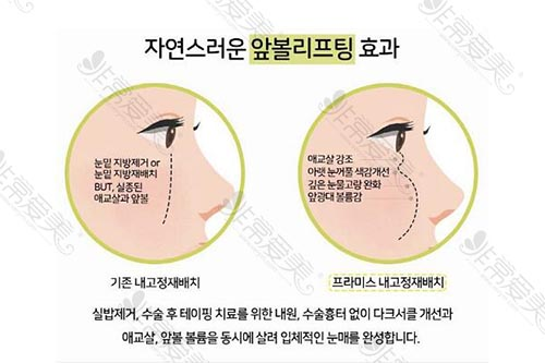 韩国promise整形脂肪重置手术