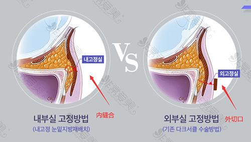 韩国promise整形医院眼整形优势