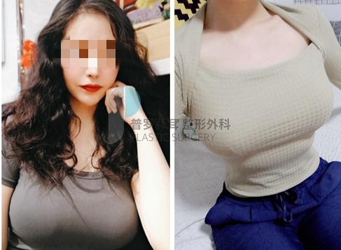 韩国普罗菲耳Profile整形医院假体隆胸