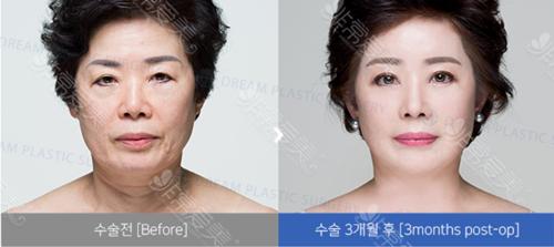 韩国DREAM梦想整形外科案例