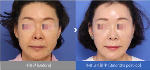 韩国DREAM梦想整形外科抗衰案例