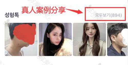 韩国tl医院轮廓手术本地人常去吗?轮廓风格什么样?
