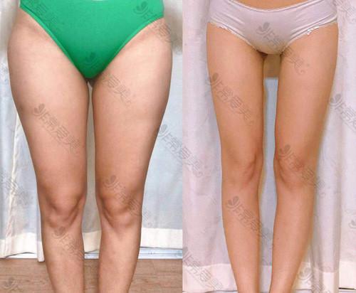 我在韩国医院大腿抽脂的亲身经历,超详细大腿吸脂心路历程!