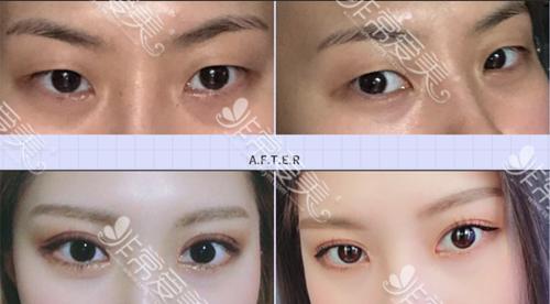 韩国秀美颜整形外科眼部整形