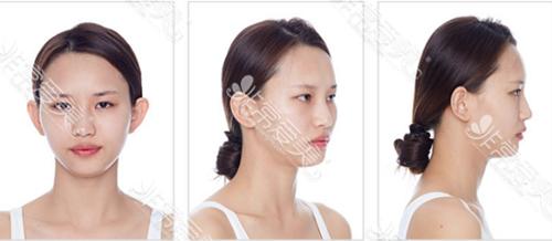 韩国秀美颜整形外科术前实拍