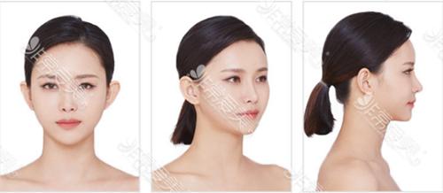韩国秀美颜整形外科术后实拍