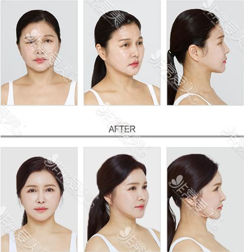 韩国秀美颜整形外科面部填充案例图