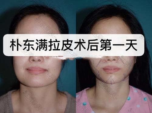 韩国BIO整形医院朴东满拉皮手术案例