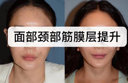 朴东满面颈部筋膜提升手术案例