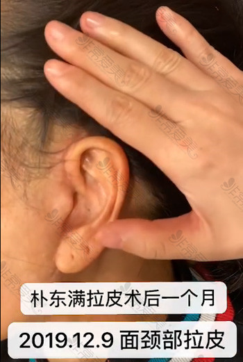 朴东满拉皮手术一个月疤痕情况