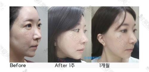 韩国拉本医院拉皮手术疤痕恢复情况