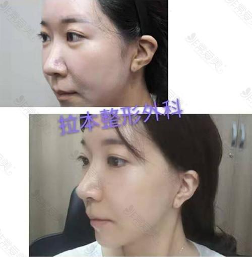 韩国拉本医院拉皮手术案例
