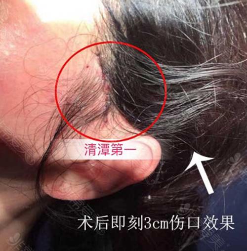韩国清潭First整形医院小切口埋线提升疤痕位置