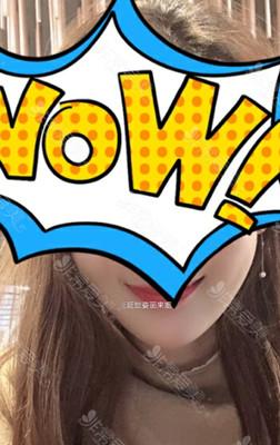 韩国延世姿丽来姻面部埋线提升如何