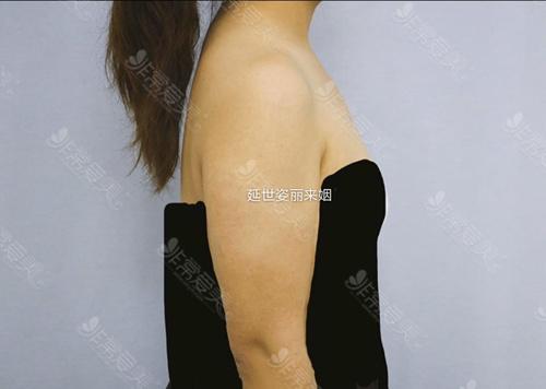 韩国延世姿丽来姻手臂环吸吸多少毫升