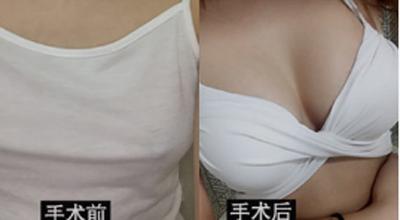韩国德莱茵医院隆胸案例对比图