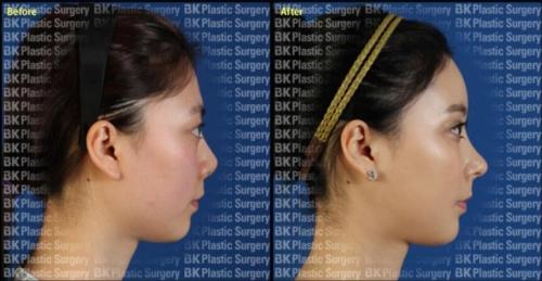 鼻头挛缩修复手术案例