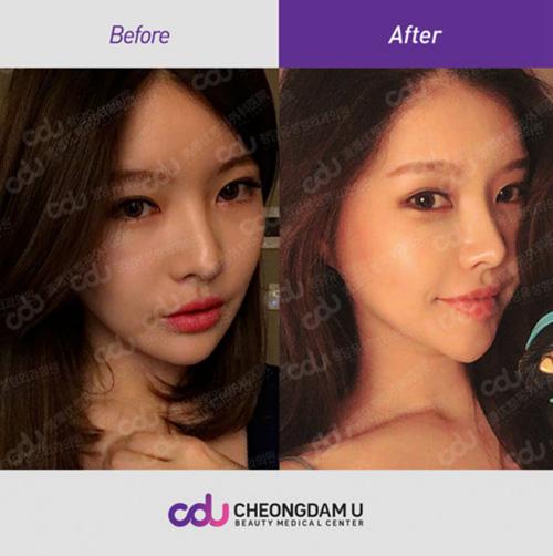 韩国CDU清潭优整形外科鼻部整形案例