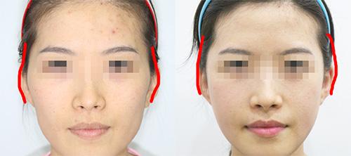 骨骼型脸大通过磨骨手术改善