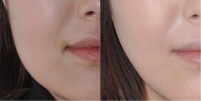 脂肪型肥大通过面部吸脂改善