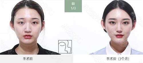 韩国爱丽克整形医院面部吸脂+隆鼻真人案例