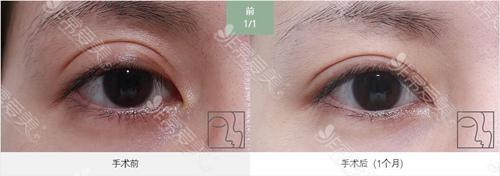 韩国爱丽克梁海元眼睛修复案例