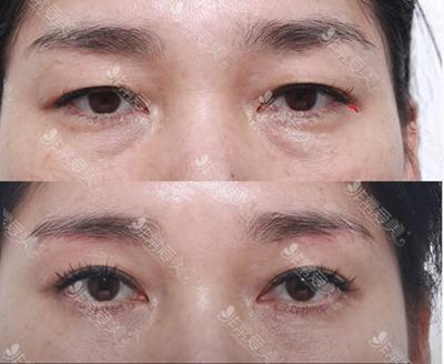 韩国爱丽克整形去眼袋效果图
