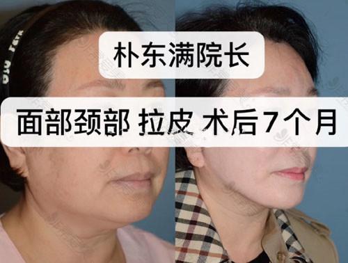 韩国BIO医院面颈部拉皮手术案例对比照