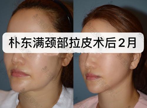 韩国BIO医院部拉皮手术案例