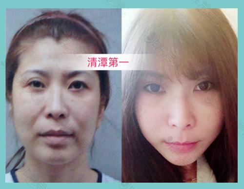 韩国清潭First整形外科小切口提升案例